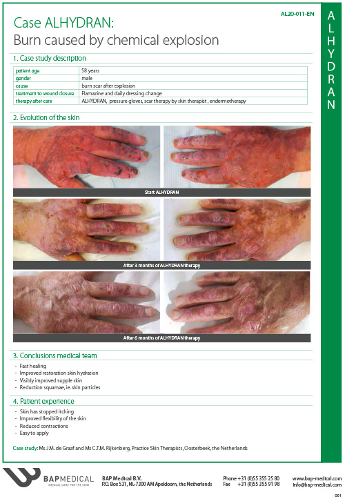 ALHYDRAN Case Study - Burn caused by chemical explosion