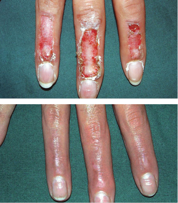 Scarban pleister, litteken verminderen