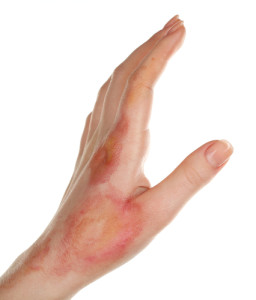 hand verbrand