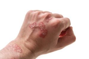 Psoriasis symptomen