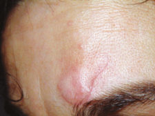 Scar from wound