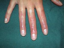 scar hand