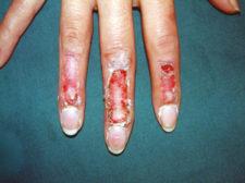 scar-hand1