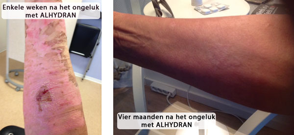 biodermal littekencreme brandwond