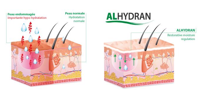 alhydran-aloe